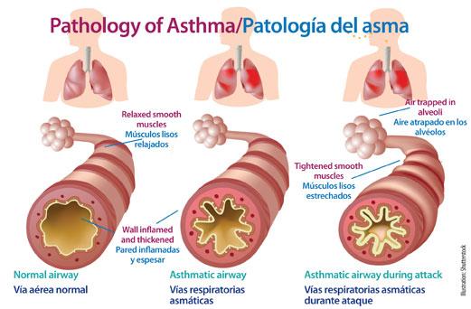 AsthmaDiagram_large