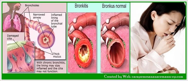 Cara-mengobati-penyakit-bronkitis