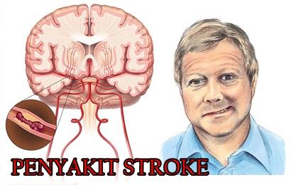 penyakit-stroke-pada-pria